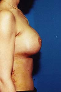 Houston breast augmentation