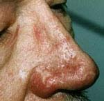 nose lesion after