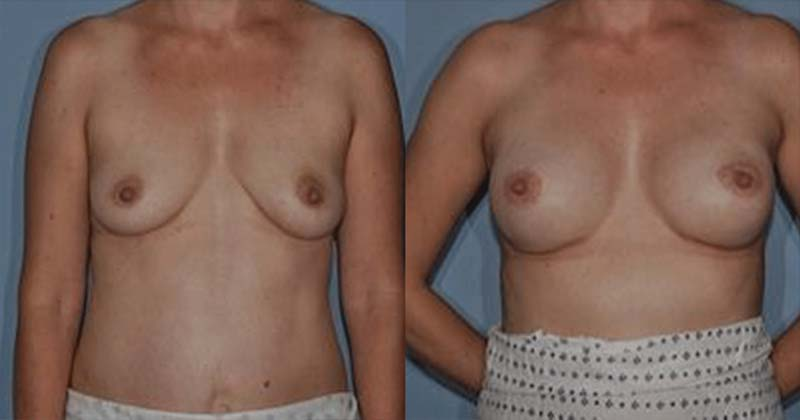 breast-reconstruction-puregraft