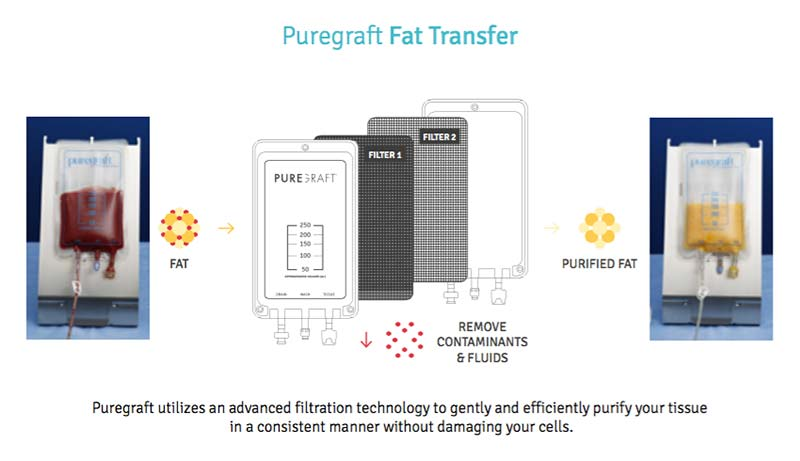 puregraft fat transfer